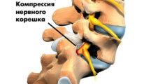 Чем характеризуется остеохондроз с…