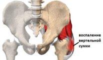 Симптомы и лечение бурсита тазобедренного…