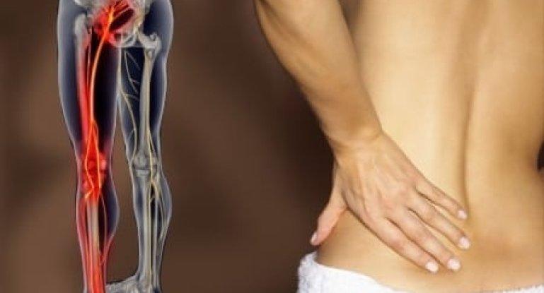 Симптомы и лечение защемления нерва в тазобедренном суставе