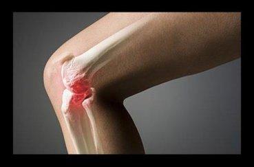 Укрепляем коленные суставы с помощью ЛФК