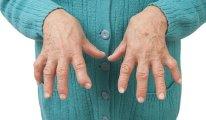 Как побороть артрит: эффективные методы и…