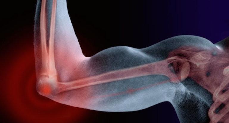 Что делать, если разорвались связки локтевого сустава?