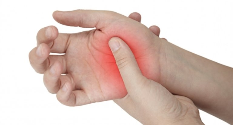 Как эффективно провести лечение артрита кистей рук?
