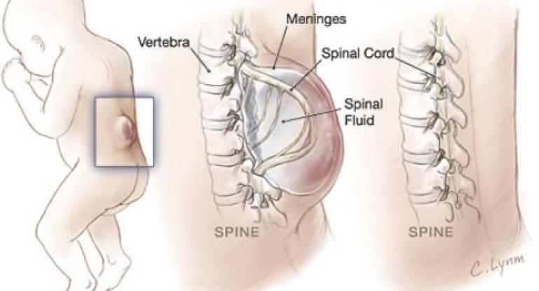 Что такое спина бифида: причины, симптомы, лечение и последствия