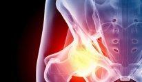 Как провести лечение тазобедренного сустава…