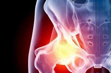 Как провести лечение тазобедренного сустава без оперативного…