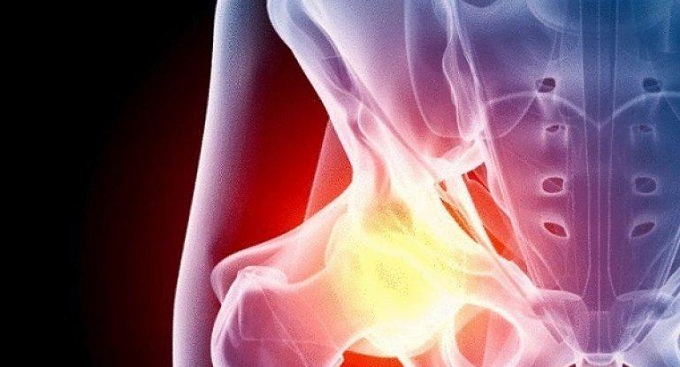 Как провести лечение тазобедренного сустава без оперативного вмешательства?