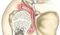 Как лечить бурсит плечевого сустава дома?