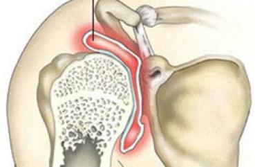 Бурсит плечевого сустава: что это такое, виды и симптомы недуга ...