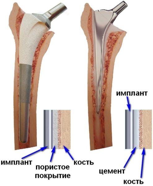Способы крепления бедренного протеза