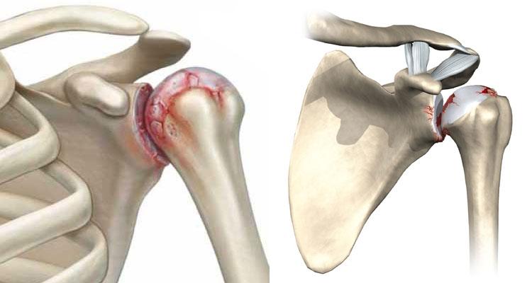 Остеоартроз плеча