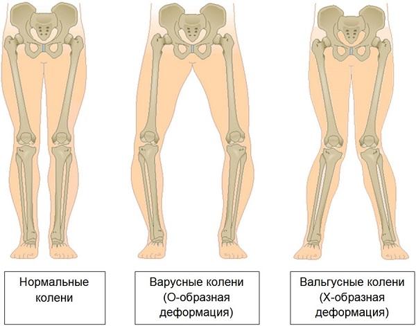 Деформация нижних конечностей