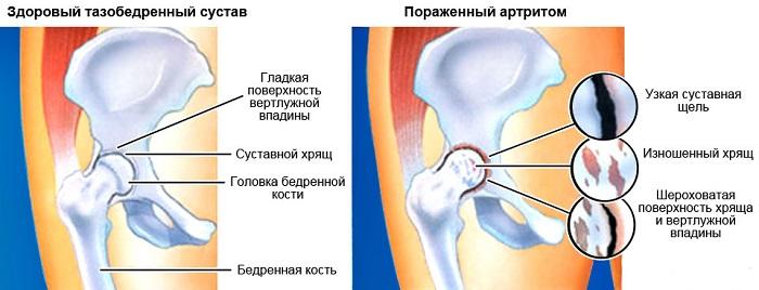 Болезнь на тазобедренном суставе