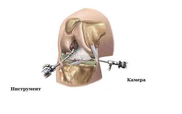 Артроскопия на коленном суставе