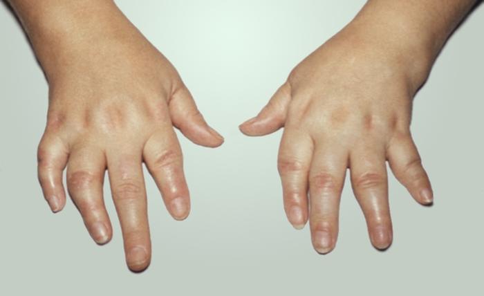 Деформация суставов рук