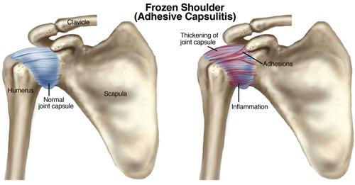 Заболевание замороженное плечо