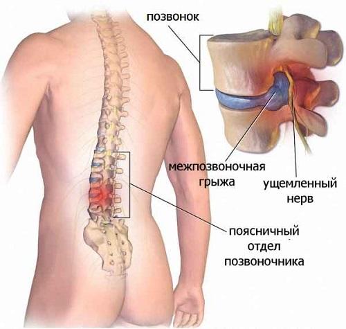 Развитие болезни в спине