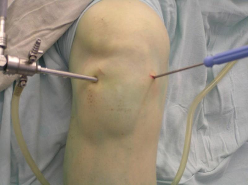 Операция артроскопия на колене