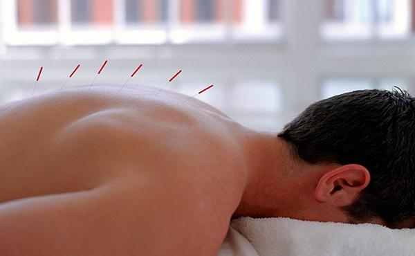 Лечебная терапия иголками