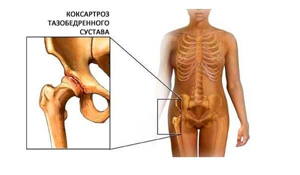 Заболевание тазобедренного сустава