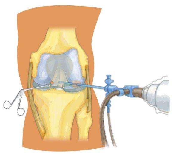 Изображение - Артроскопическая резекция медиального мениска коленного сустава Knee_arthroscopy_1-e1486956841442