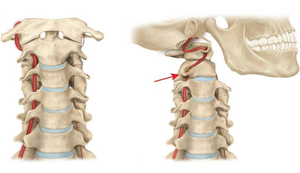 Вид защемленной артерии