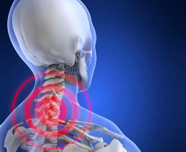 Остеохондроз - боль в шее