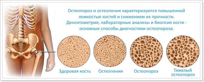 Различные стадии болезни