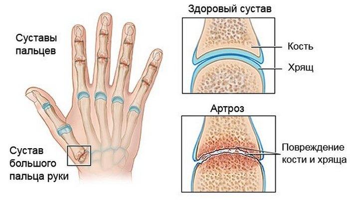 Повреждение кости и хряща