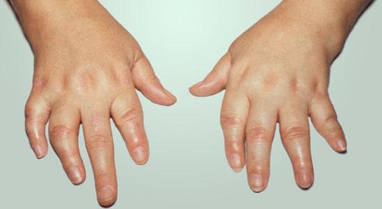Запущенная стадия псориатического артрита