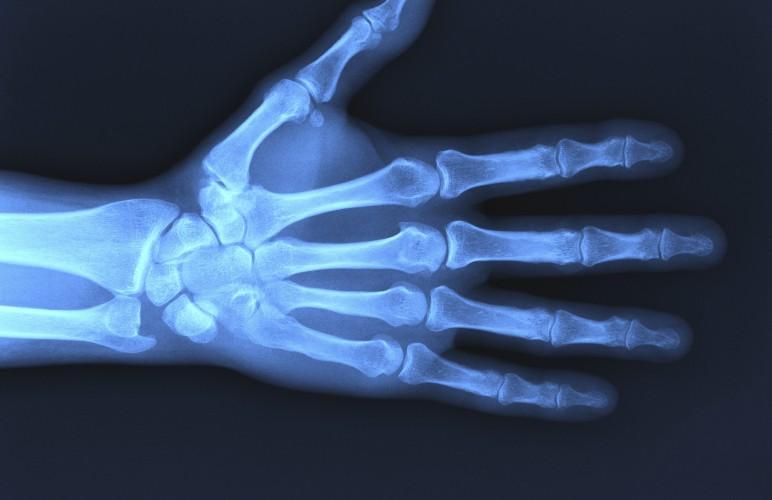 Рентген снимок руки