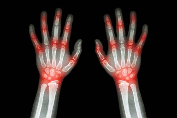Снимок пораженных рук