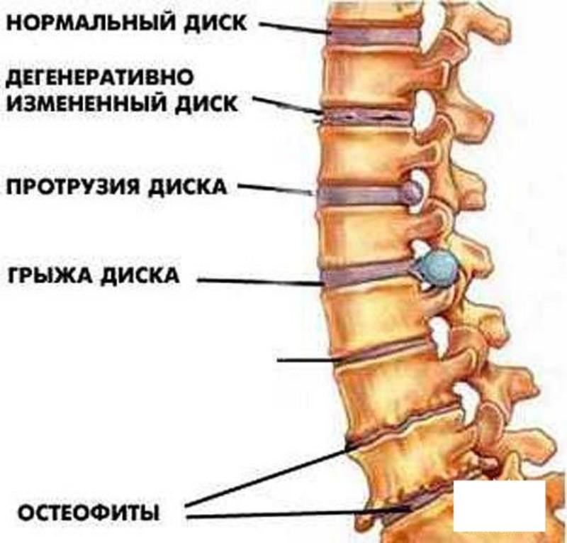 Стадии диагноза