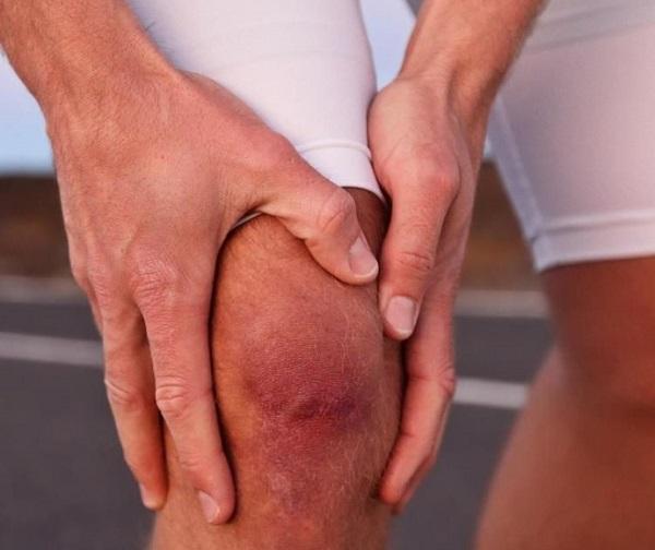 Травмированный коленный сустав