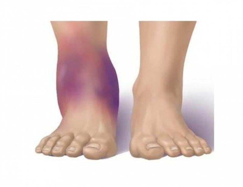 Отечность ноги после вывиха