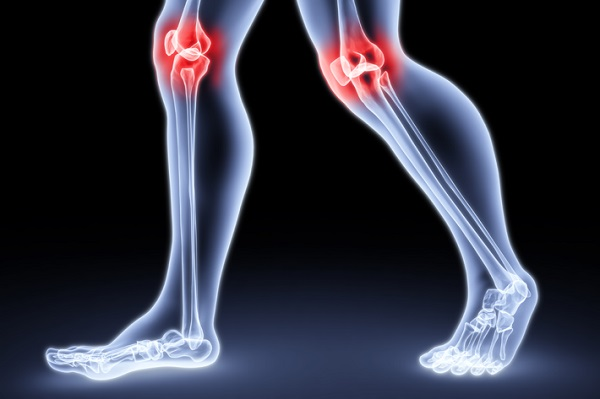 Боезненные синдромы в коленях
