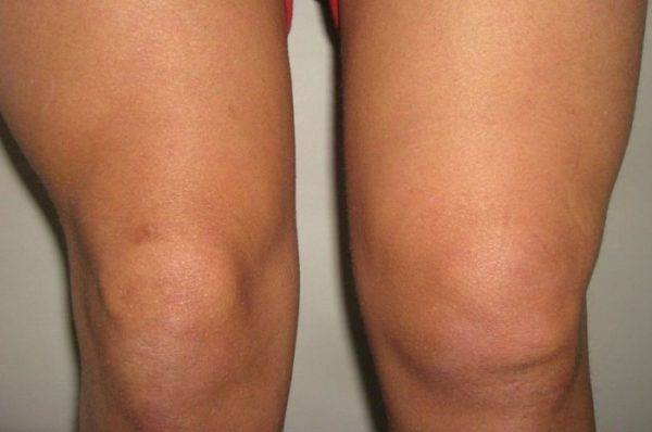 Ноги с диагнозом бурсит