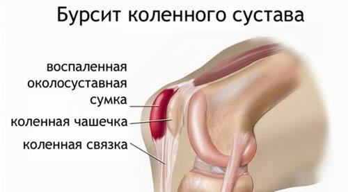 Как выглядит бурсит колена