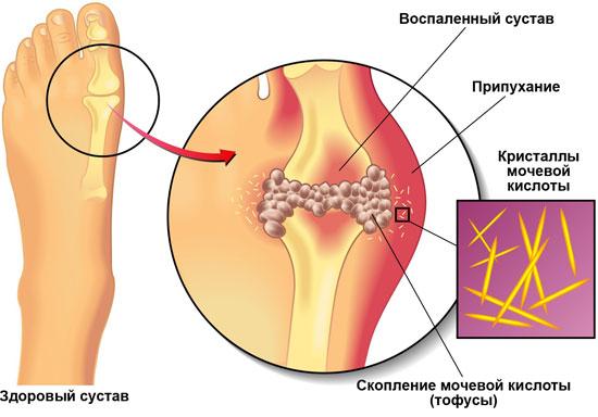Воспаленный сустав на пальце ноги