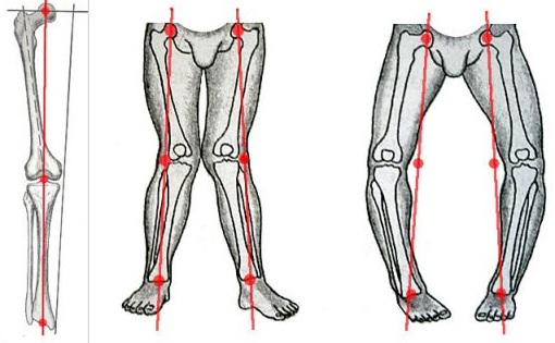 Видимая деформация коленей