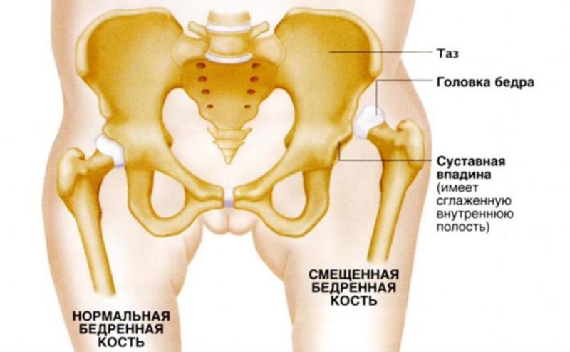 Дисплазия тазобедренных суставов