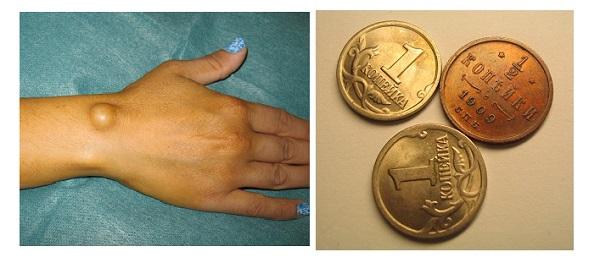 Медные монеты для лечения шишки