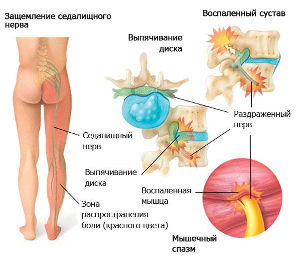 Защемление нерва и провление грыжи