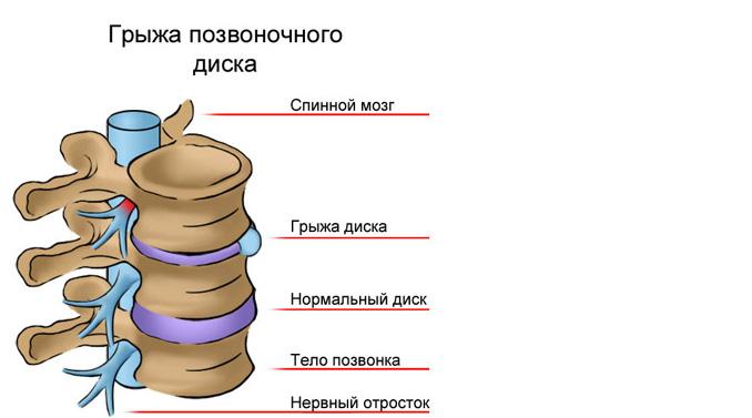 Строение позвоночника и проявление заболевания