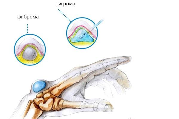 Вид гигромы и фибриомы руки