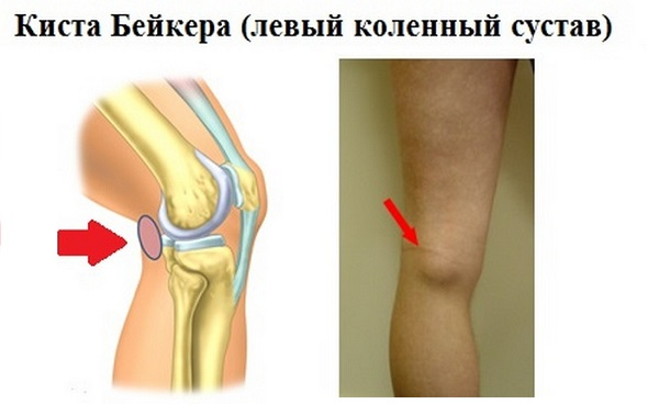 Заболевание на левом коленном суставе