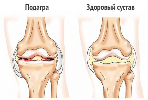 Воспаление на коленном суставе