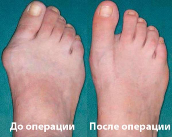 Вид ноги до и после операции