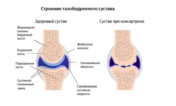 Механизм развития недуга