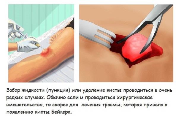 Пункция и удаление кисты